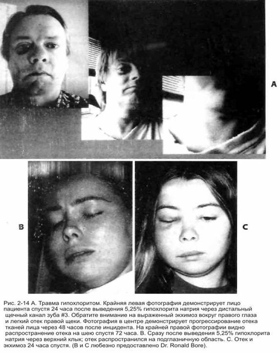 Травма гіпохлоритом натрію