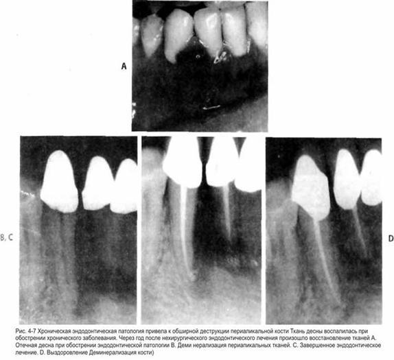Прогноз ендодонтичного лікування