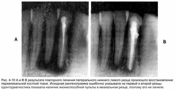 Складання плану ендодонтичного лікування