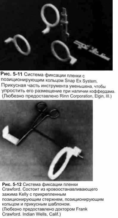 Принципи ендодонтичної рентгенографії