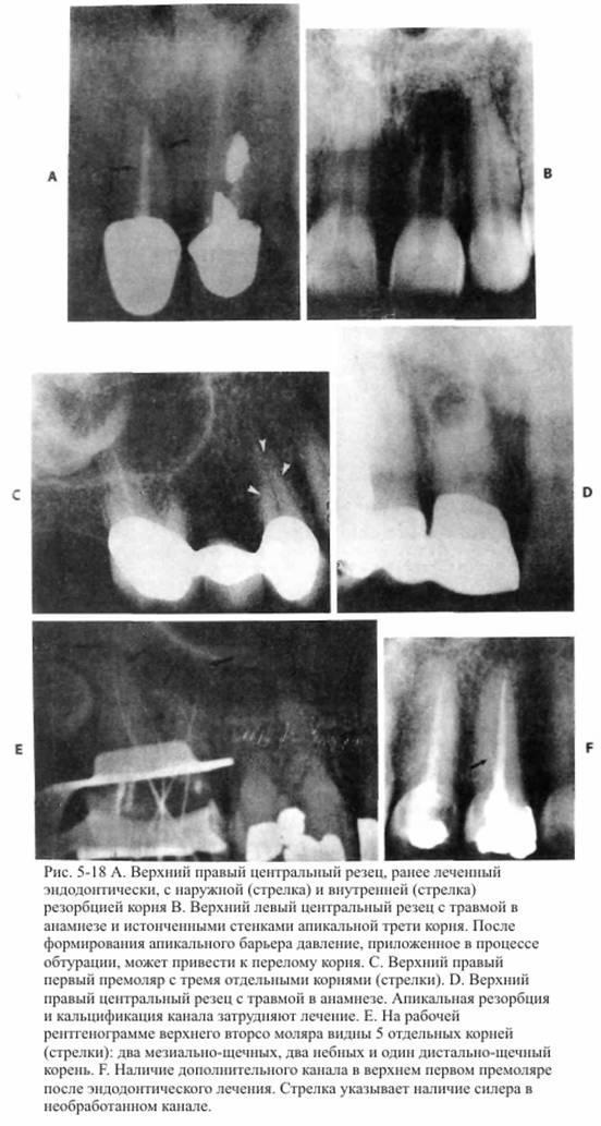 Читання рентгенограм в ендодонтії
