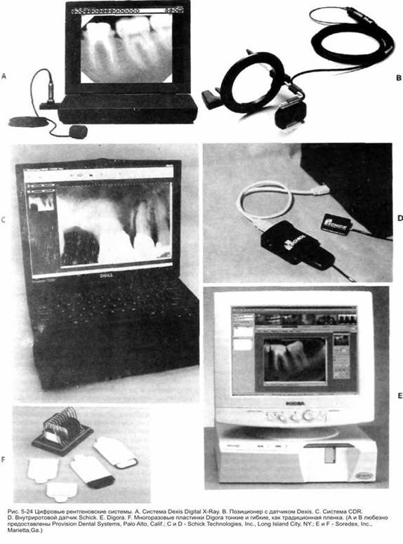 Цифрова рентгенографія