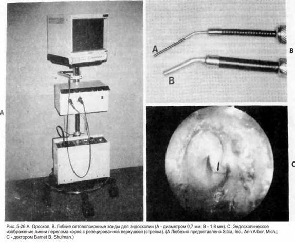 Ороскопія та ендоскопія