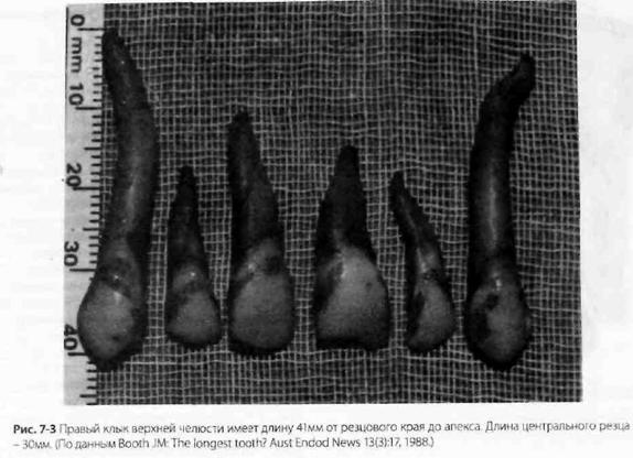 Морфологія зубів і формування доступу