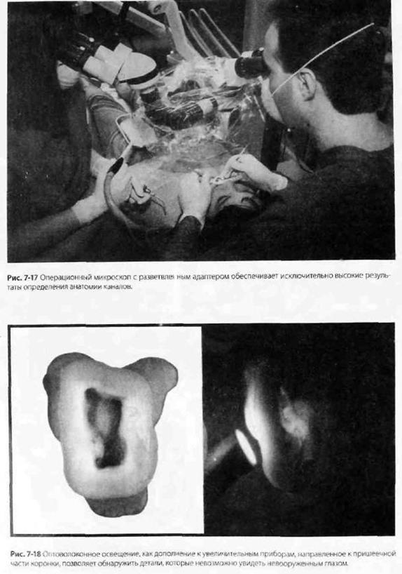 Створення доступу в зубах, покритих повними коронками