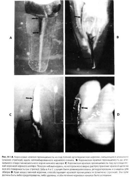 Пломбування очищеної і сформованої системи кореневих каналів