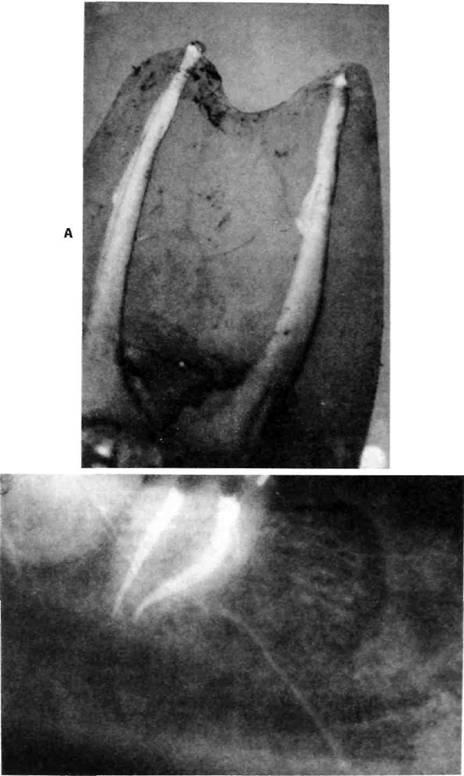 Високо рентгено-контрастні силери