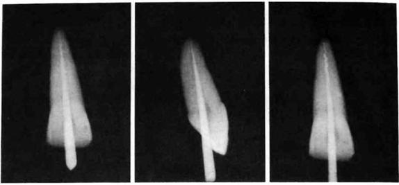 Ущільнення термопластифікованої гутаперчі
