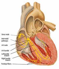 Синдроми передчасного збудження шлуночків