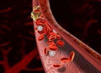 Венозні тромби