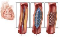 Відновлення коронарного кровотоку