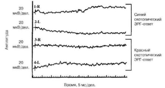 Електроретінографіі, електроокулографіі і тим нова адаптація