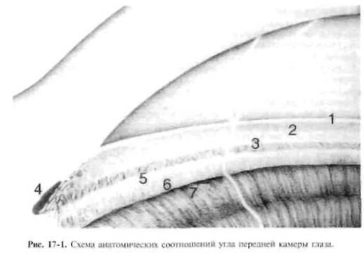 Закритокутова глаукома