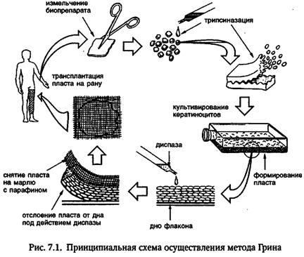 Відбір біоптатів шкіри для виділення і подальшого культивування кератиноцитів