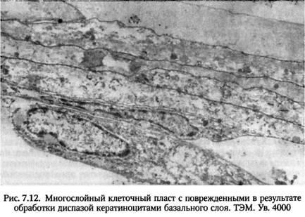 Трансплантація вирощених епітеліальних пластів на ранові поверхні