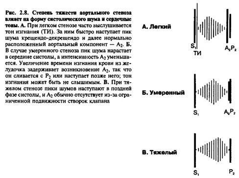 Систолічні шуми