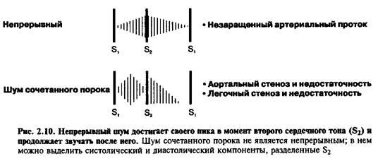Безперервні (постійні) шуми
