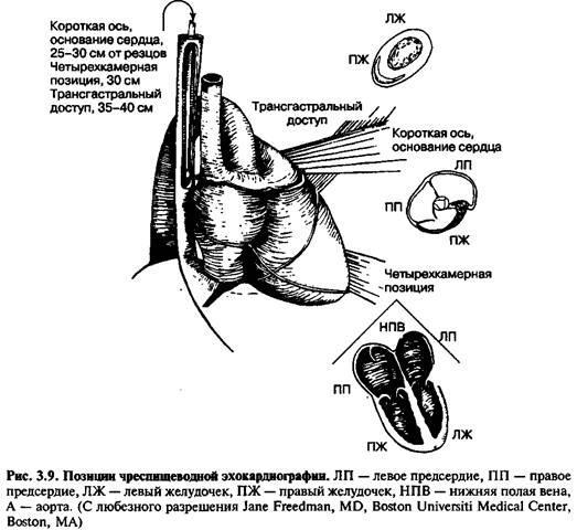Ехокардіографія
