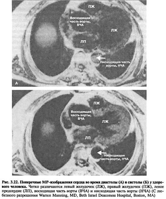 Магнітно-резонансна томографія (mpt)