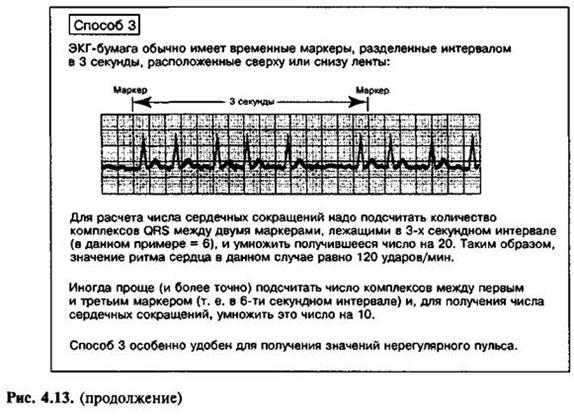 Інтерпретація електрокардіограми
