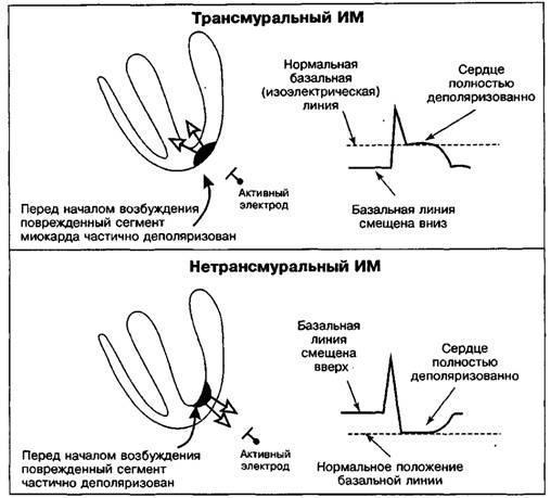Зміни сегмента ST і зубця Т