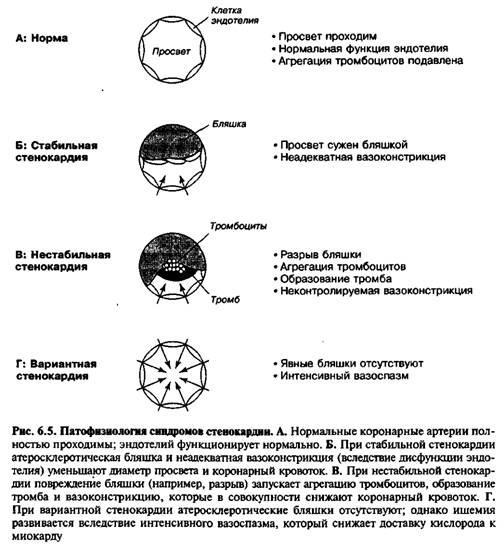 Інші причини ішемії міокарда
