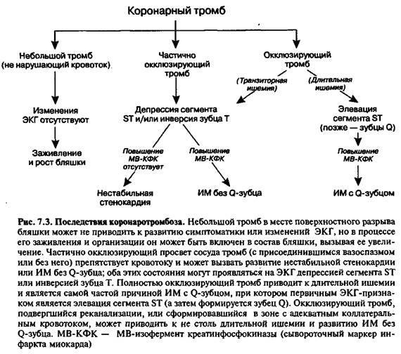 Наслідки коронарного тромбозу