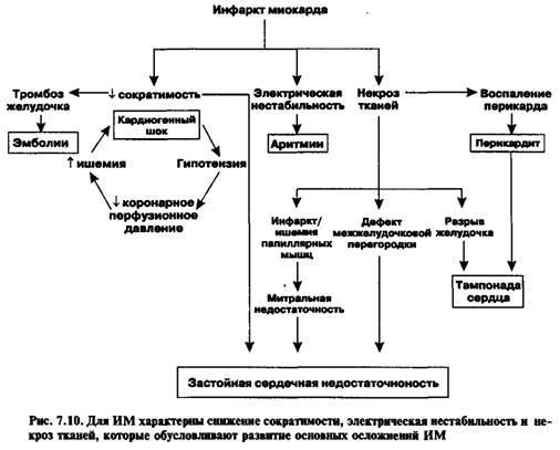 Дисфункція міокарда застійна серцева недостатність