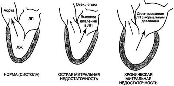 Недостатність мітрального клапана етіологія