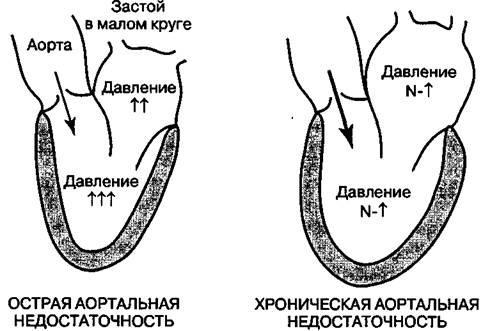 Недостатність аортального клапана