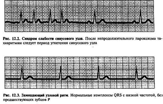 Синдром слабкості синусового вузла