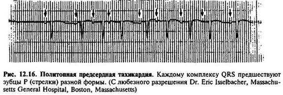 Пароксизмальні надшлуночкові тахікардії