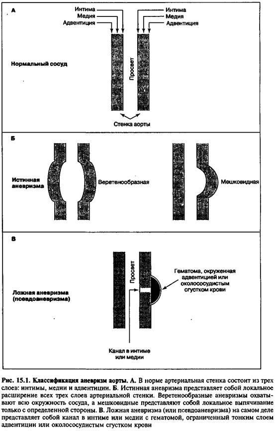 Аневризми аорти