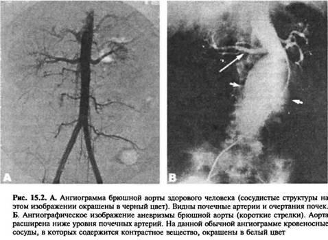 Етіологія і патогенез істинних аневризм аорти