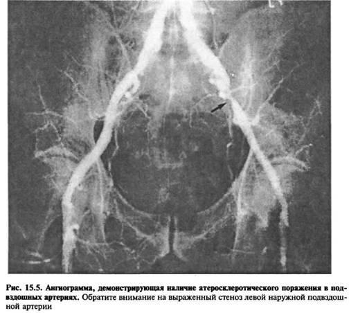 Захворювання, що призводять до оклюзії артерій