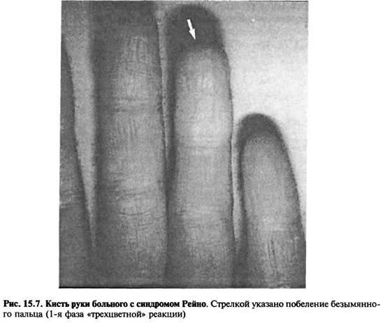 Захворювання, що викликають судинний спазм: синдром Рейно