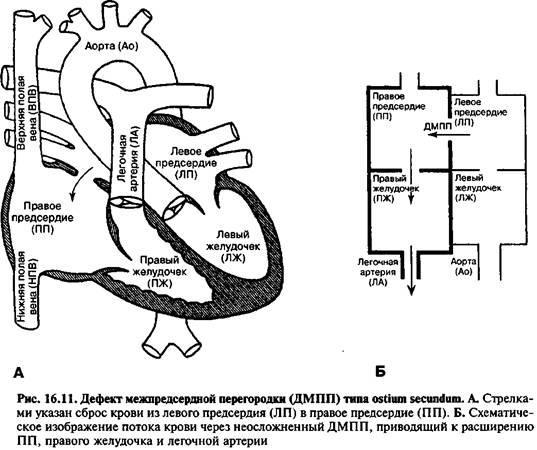 Пороки серця без ціанозу