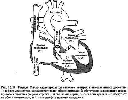 Ціанотичні пороки серця