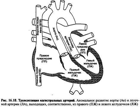 Транспозиція магістральних артерій