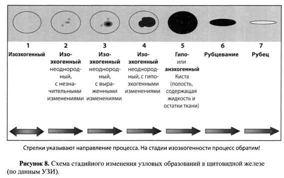 Етапна зміна вузлів