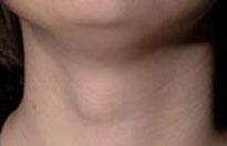 Захворювання щитовидної залози