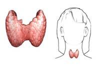Малі операції. Лікування спиртом або склеротизація