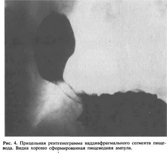 Глава 4. Рентгенологічне дослідження стравоходу