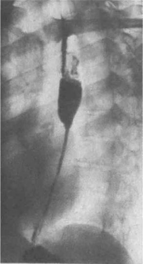 4.6. Езофагіти