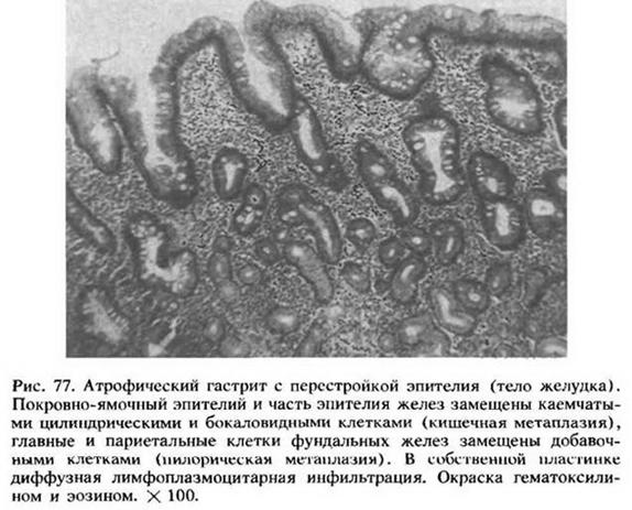 20.4. Патологічна анатомія