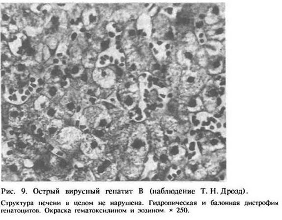 5.2. Гострий вірусний гепатит В (сироватковий гепатит)