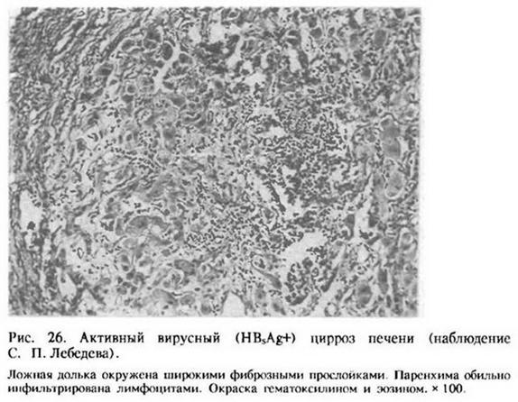 Глава 9. Цироз печінки<br>9.1. ПОШИРЕНІ ФОРМИ