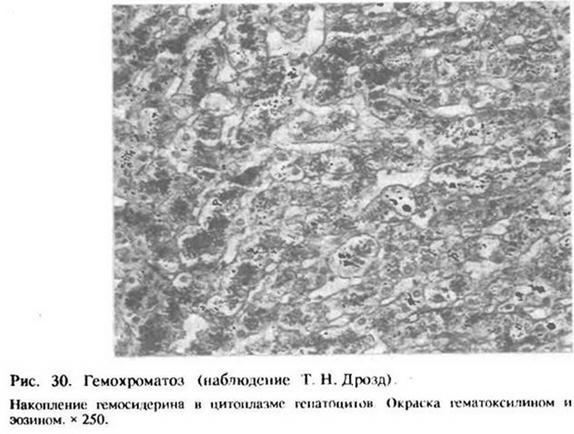 10.2. ПОРУШЕННЯ ОБМІНУ ЗАЛІЗА. Гемохроматоз