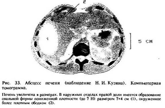 Глава 13. Абсцес печінки