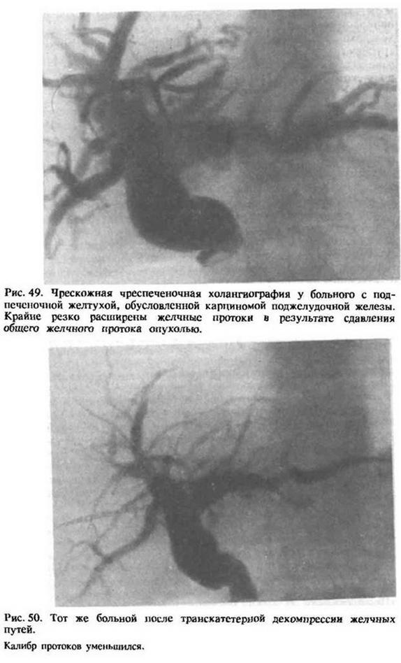 Глава 18. Рентгенологічні методи дослідження біліарної системи